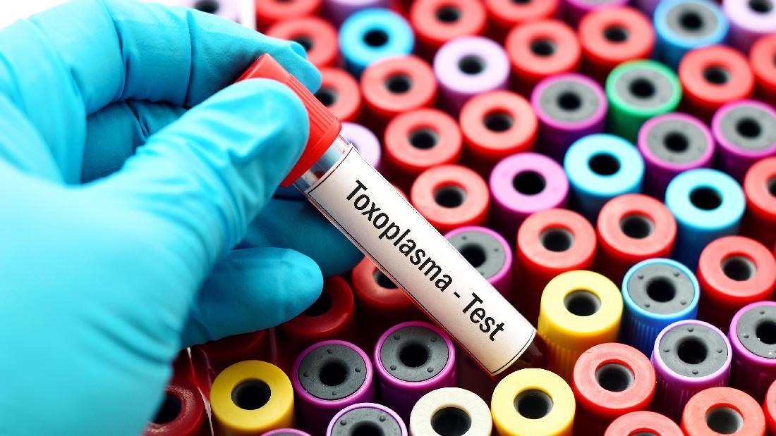 toxoplazma aktivitás