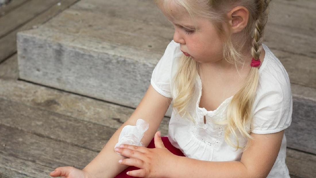 Cara Mengatasi Biang Keringat Pada Bayi Secara Alami ...