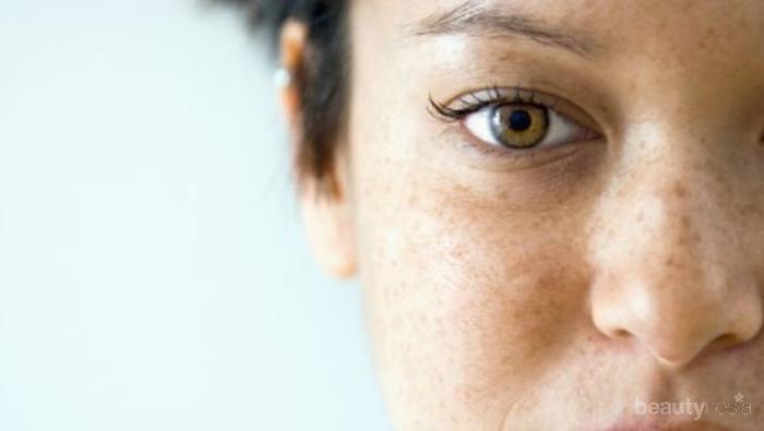 Bisa Kamu Coba Di Rumah Begini Cara Menghilangkan Flek Hitam Di Wajah