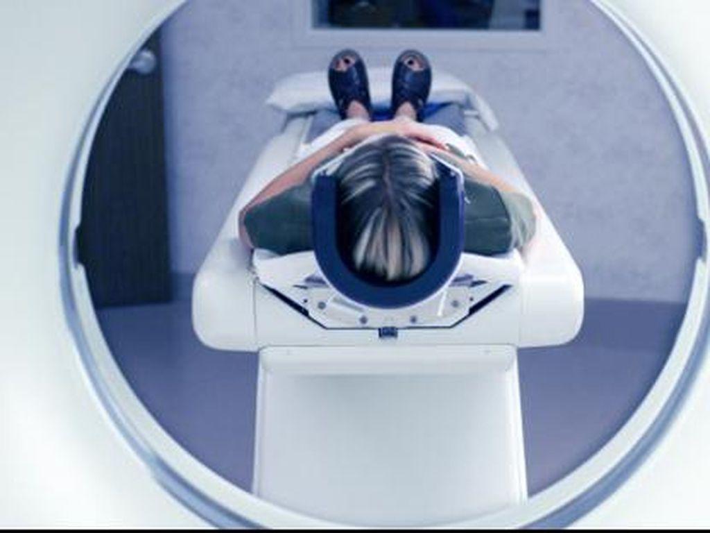 Ini Terapi Trombolisis RSPON yang Bisa Tangani Stroke dengan Cepat