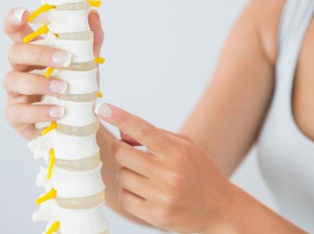 Bukan Hanya Perempuan, Pria Juga Rentan Kena Osteoporosis