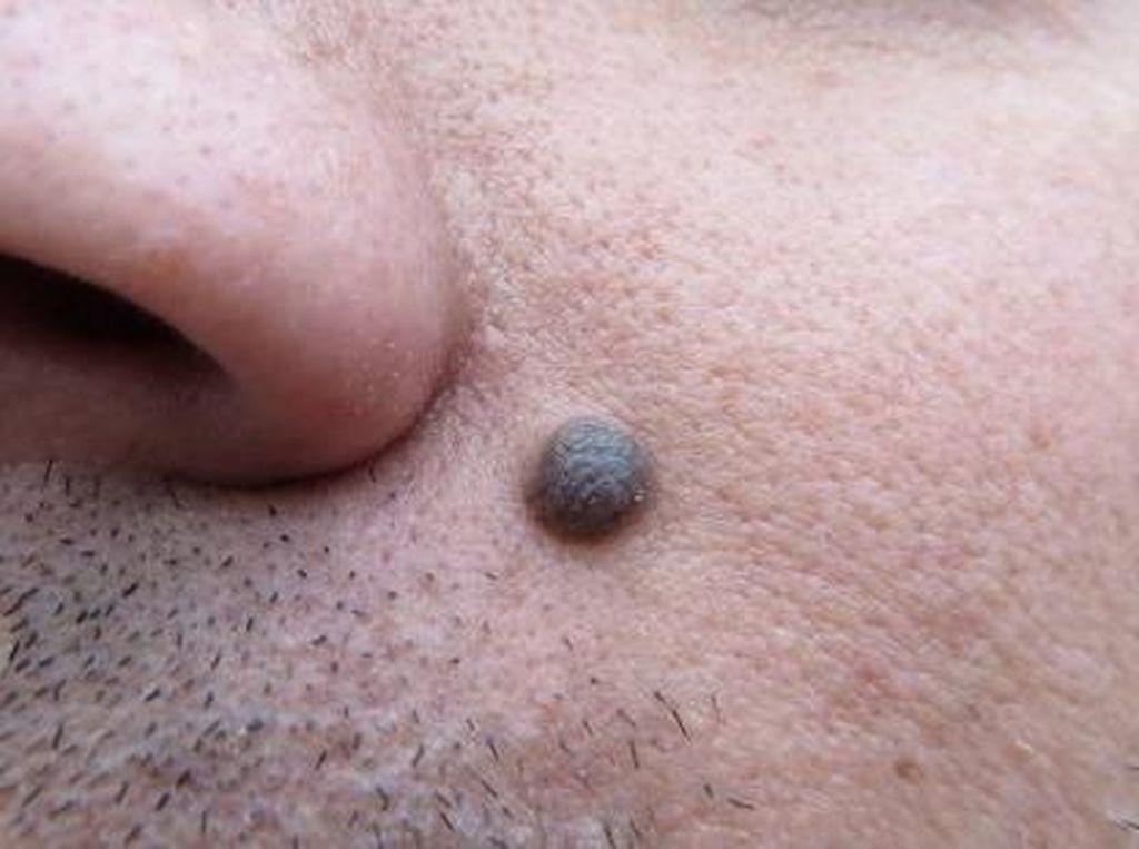 Asal-usul Nama Tahi Lalat dan Kaitannya dengan Kesehatan