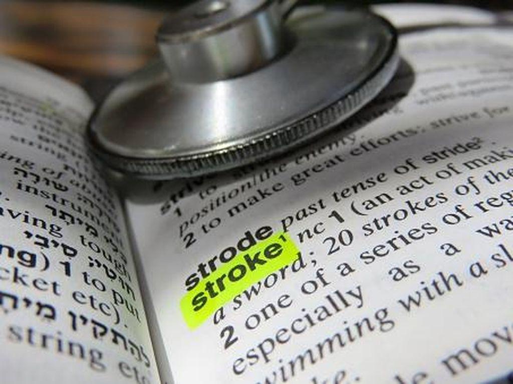 5 Fakta Stroke yang Penting Diketahui