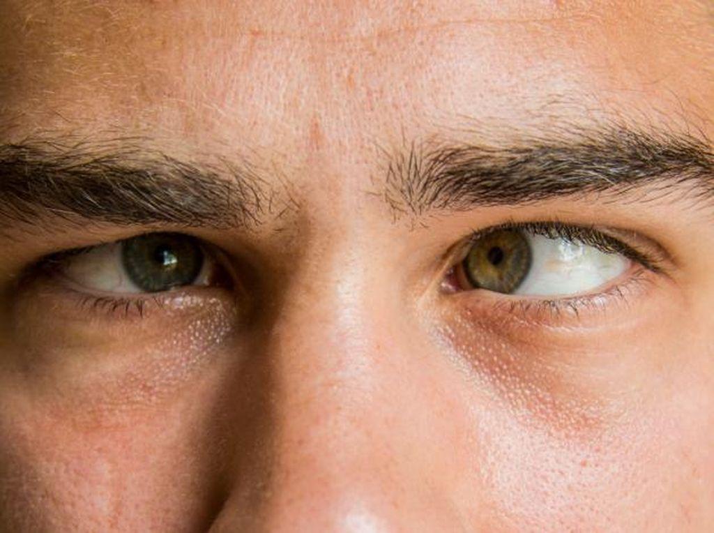 Sering Menjulingkan Mata untuk Lihat Gambar 3D? Awas Juling Beneran