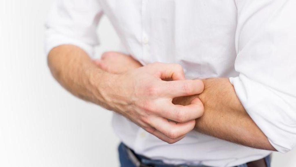 Leishmaniasis, Bermula Borok di Kulit Lalu Bisa Sebabkan Kematian