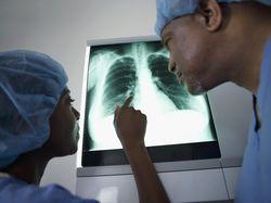 Potongan Tongkat Swab COVID-19 Tertinggal di dalam Paru-paru Wanita Ini