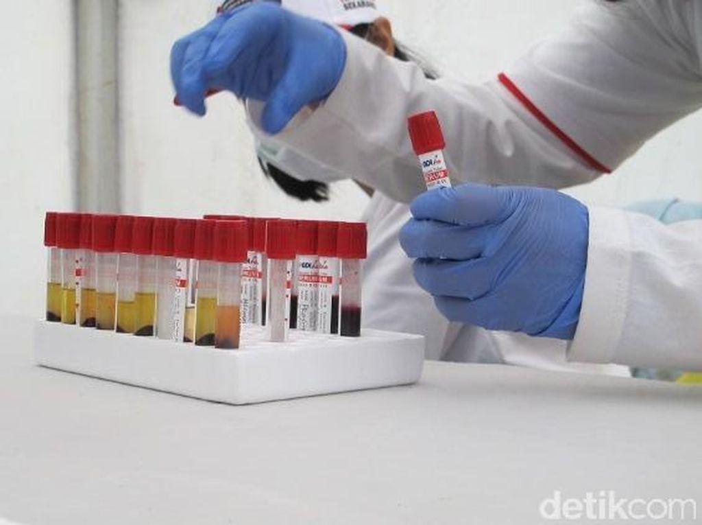 Jangan Tahunya Gangbang Saja, Kenali Berbagai Istilah Seputar HIV Berikut