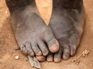 PBB Serukan Negara Teluk Bantu Cegah Kelaparan Massal di Yaman