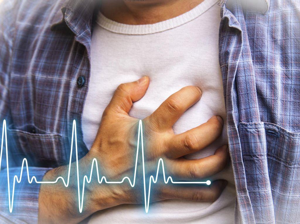 Bisa Picu Serangan Jantung, Kenali Faktor Risiko Sumbatan Koroner STEMI