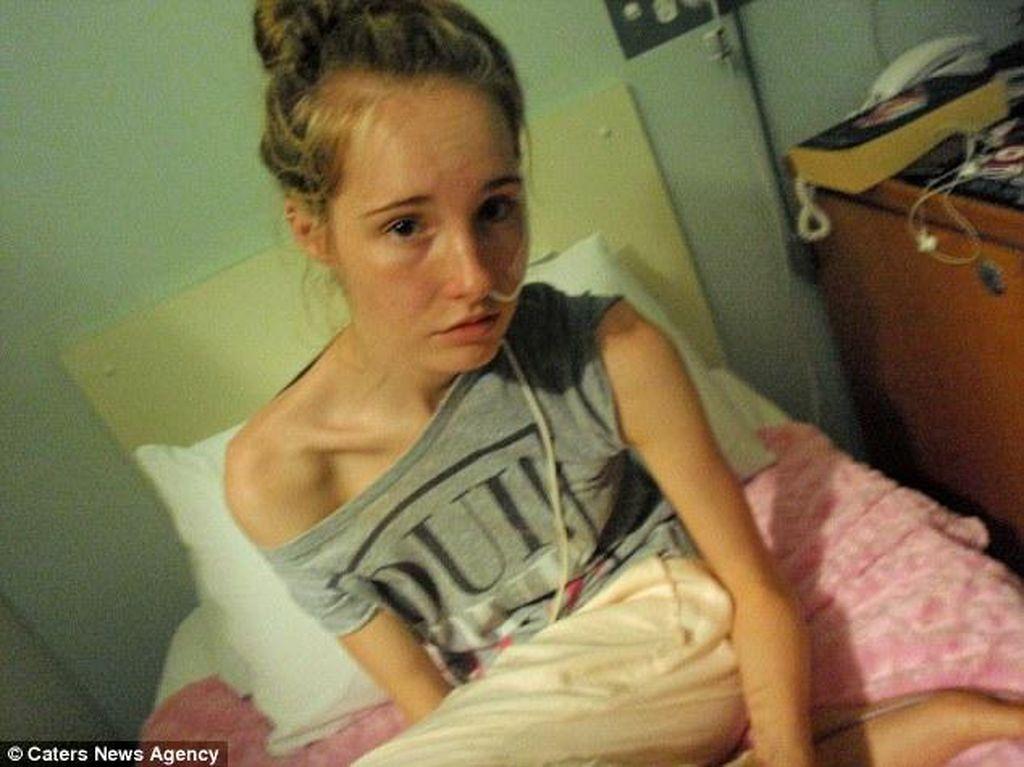 Kisah Gemma, Hanya Berbobot 28 Kg Gara-gara Anoreksia dan Bulimia