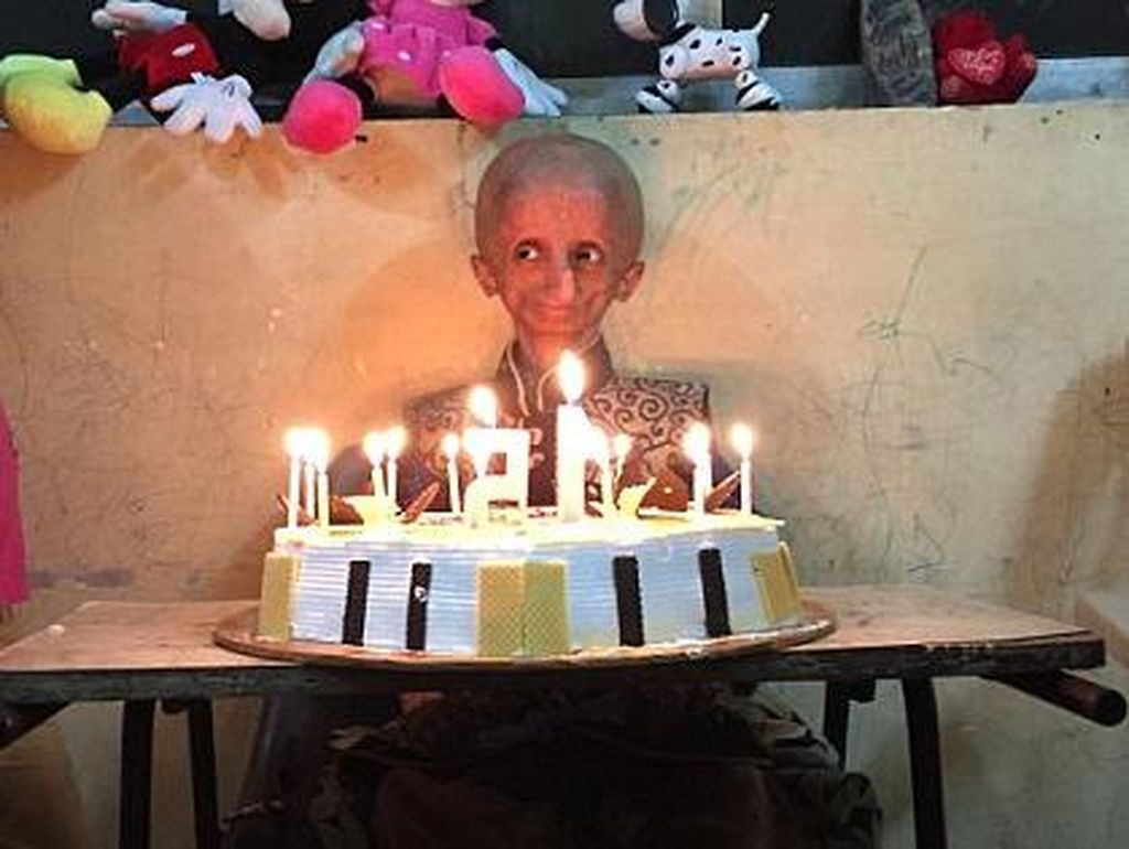 Nihal, Remaja 15 Tahun yang Tubuhnya Seperti Kakek-kakek Akibat Progeria