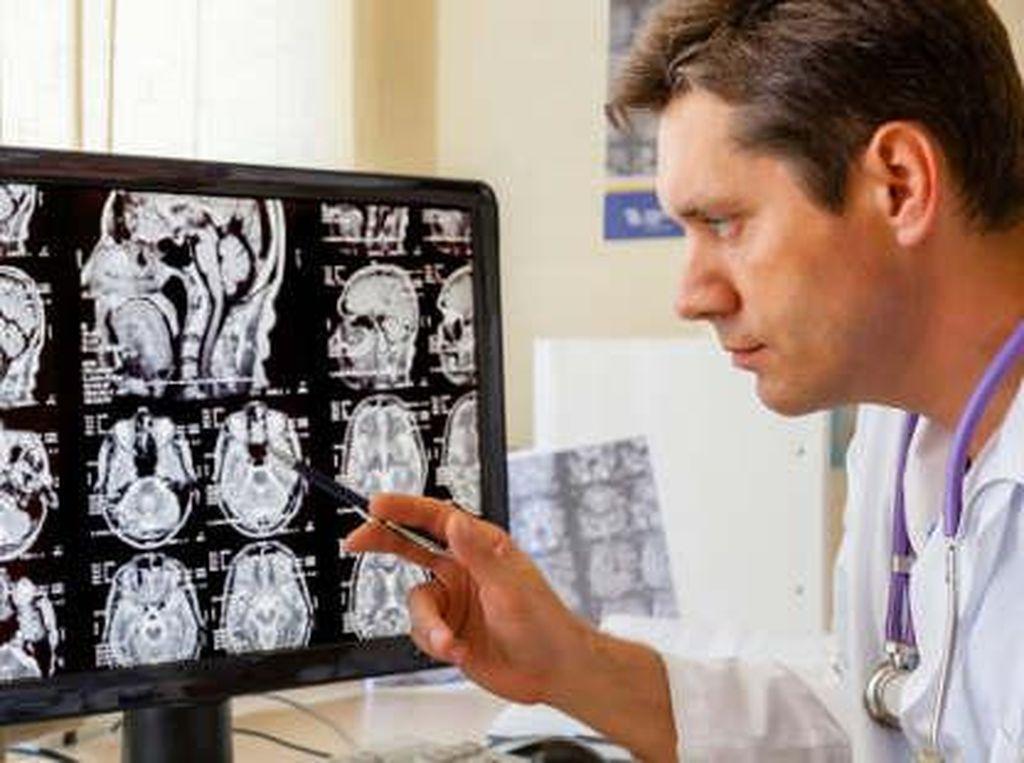 Tumor di Otak pada Wanita Ini Picu Delusi Menyeramkan