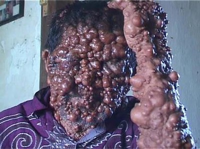 Menyedihkan! Potret Orang-orang dengan Tumor di Wajah Akibat Penyakit Langka