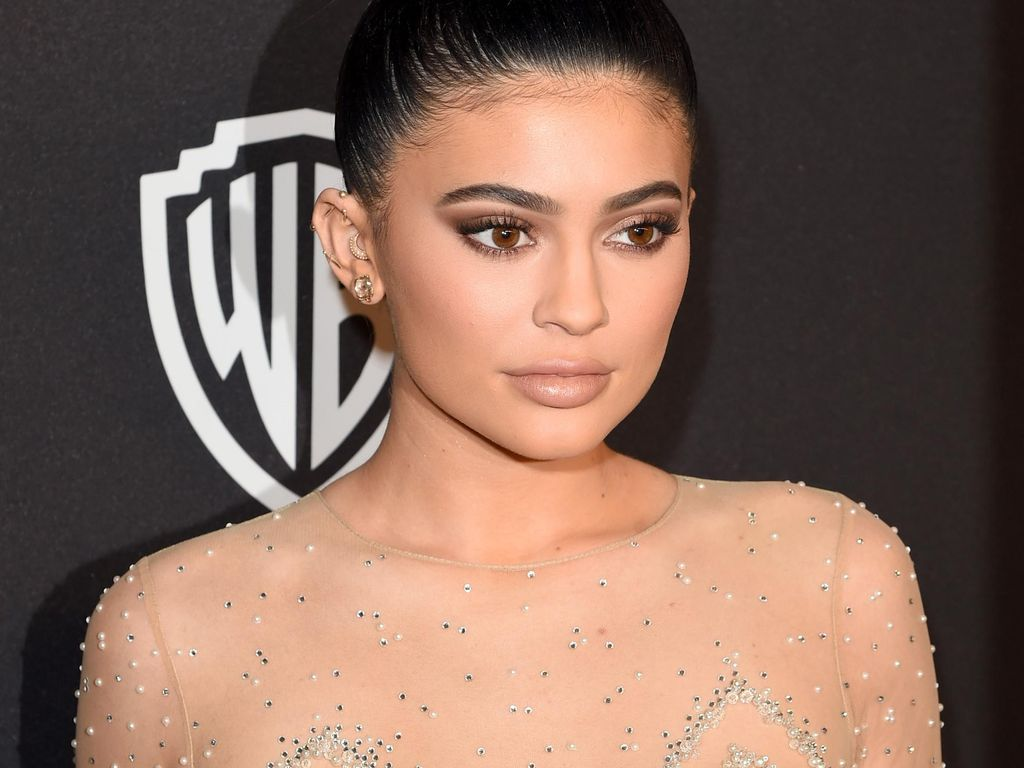 Dokter Kecantikan Indonesia: Filler Bibir Kylie Jenner Tren yang Negatif