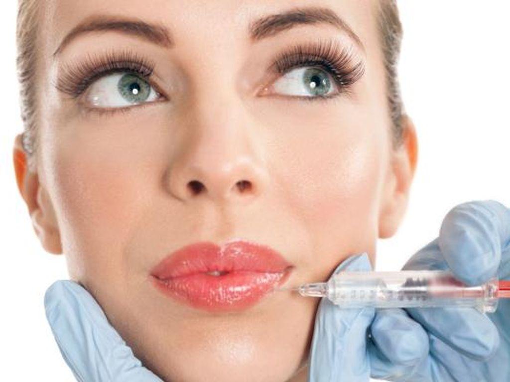 Niat Percantik Diri dengan Filler Bibir, Wanita Ini Malah Kena Infeksi Parah