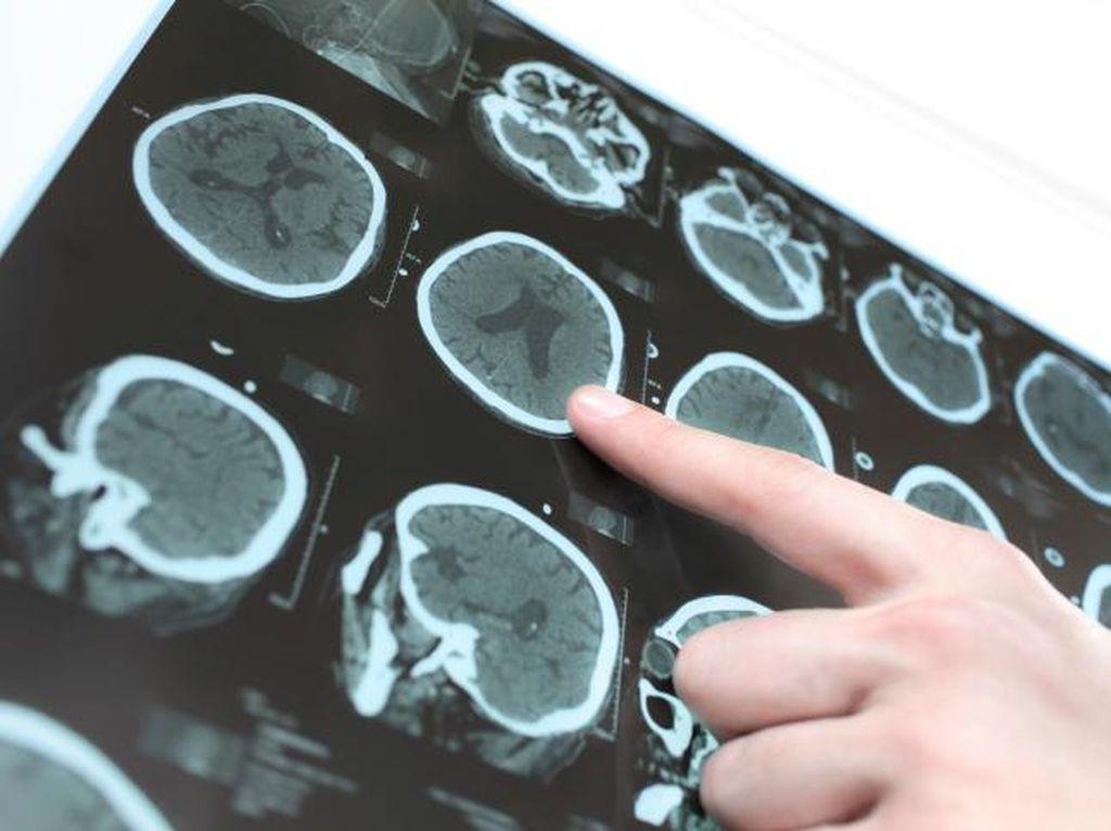 Migrain Bertahun-tahun, Ternyata Ada Cacing Pita di Otak Wanita Ini