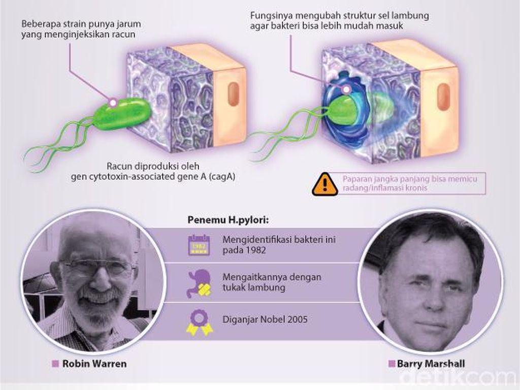 Ilmuwan Peraih Nobel Sebut Tak Semua Bakteri Tukak Lambung Menghasilkan Racun