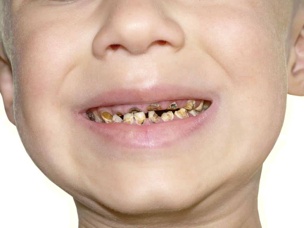 5 Tahap Terjadinya Gigi Berlubang pada Anak Akibat Botol Susu