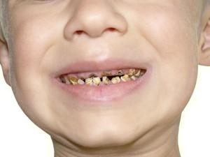 Ini Lho Bun Penyebab Gigi Gigis pada Anak