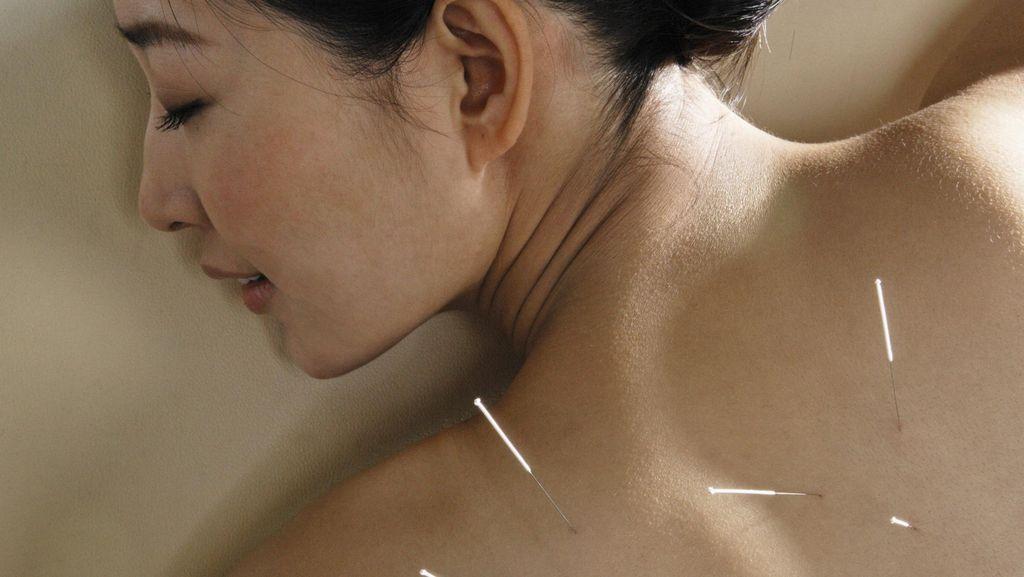 Terserang Gejala Hot Flash Saat Menopause? Redakan dengan Akupunktur