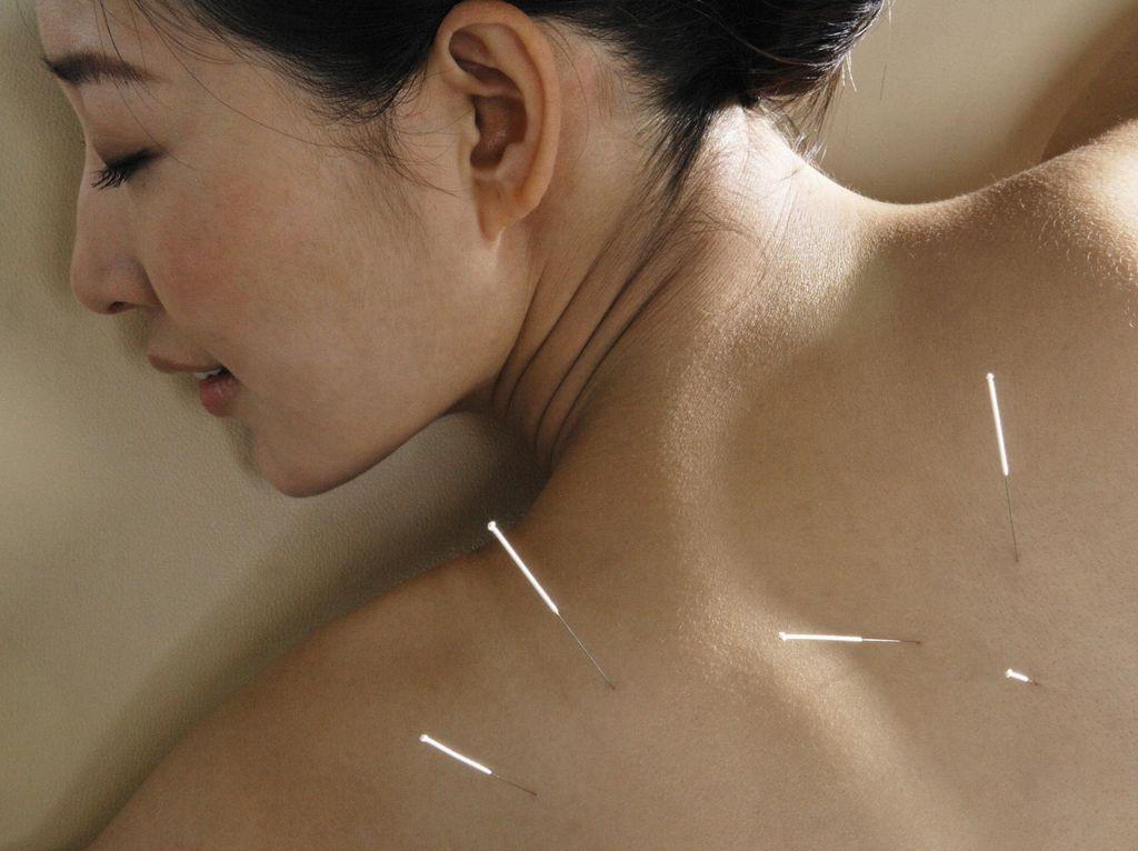 Studi Sebut Akupunktur Bisa Turunkan Risiko Kematian Pasien COVID-19