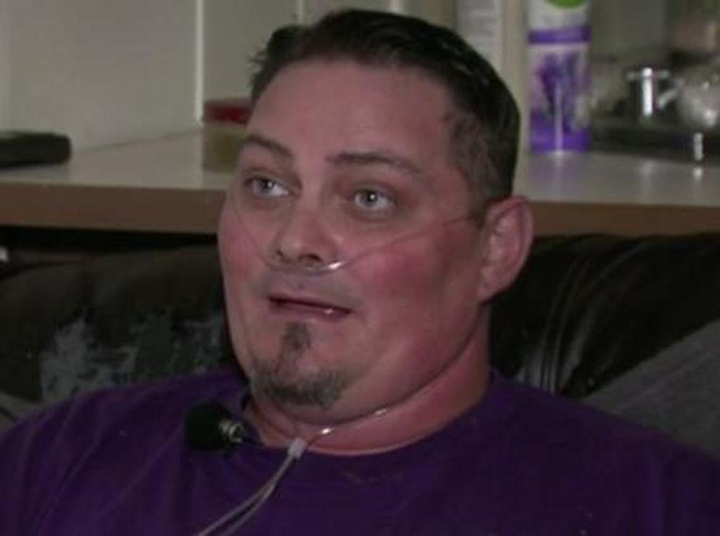 Ke Dokter Berniat Cabut 4 Gigi, Pria Ini Malah Kehilangan Semua Giginya