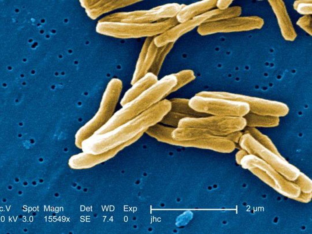 Lockdown Global Corona Bisa Memicu Lonjakan Kematian karena TBC