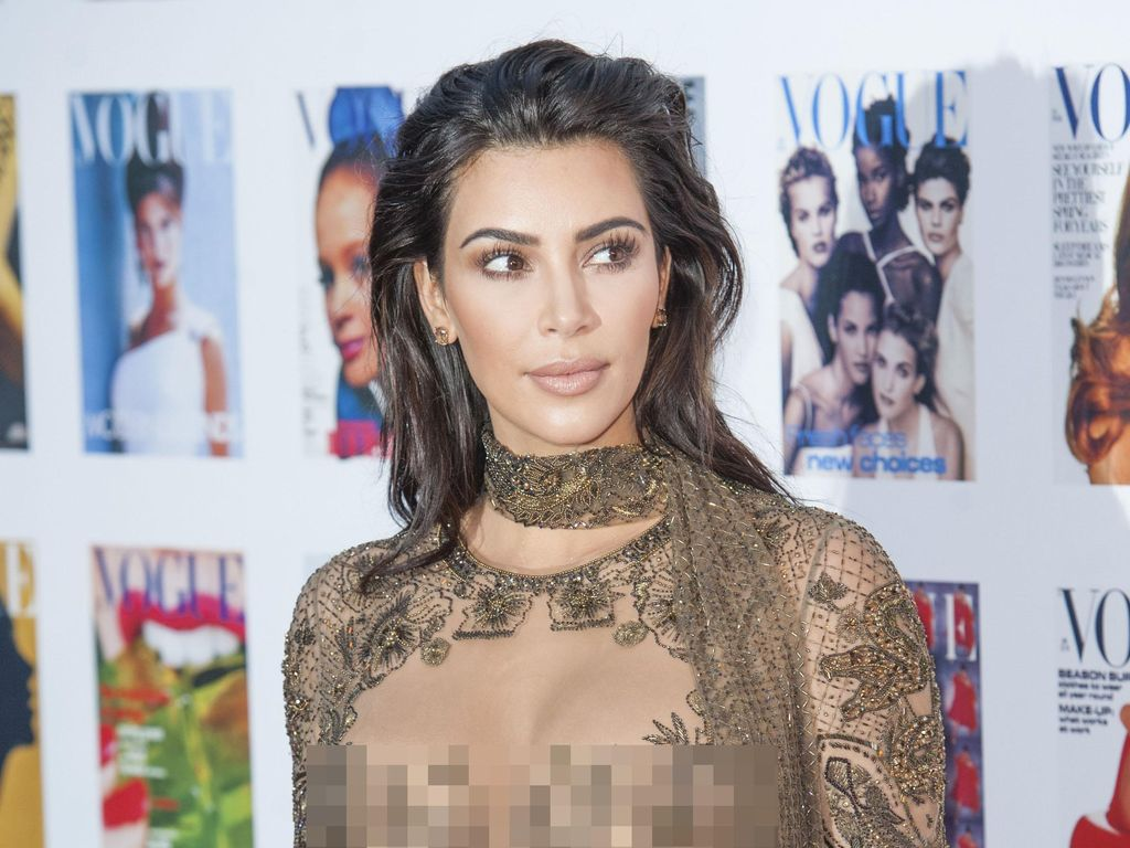 Ikuti Michael Phelps, Kim Kardashian Juga Lakukan Terapi Bekam