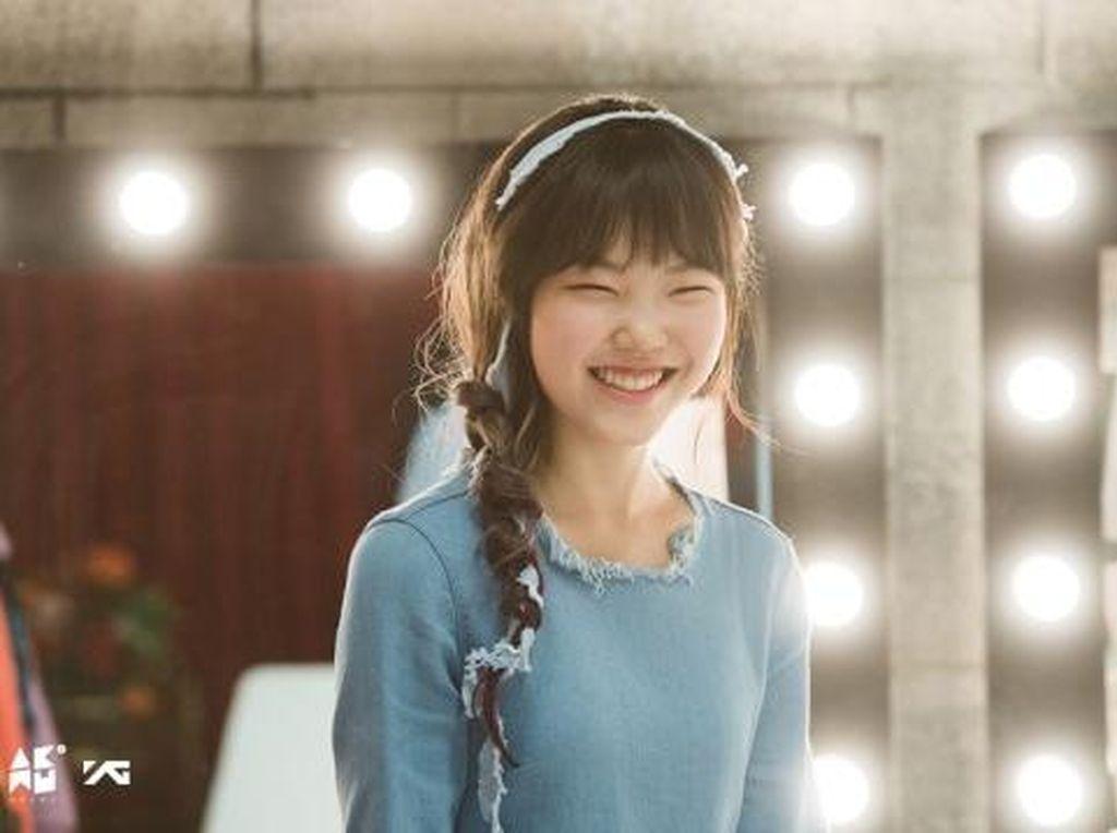 Suhyun AkMu Tolak Tawaran Operasi Plastik dari YG Entertainment