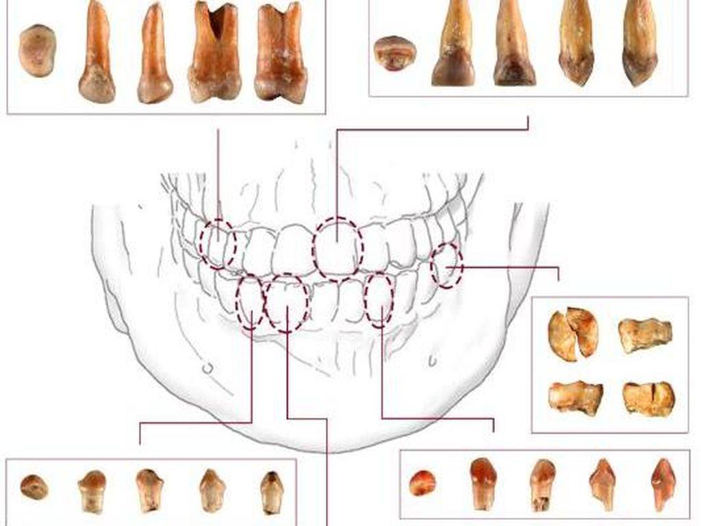 Penampakan Fosil Gigi dan Rahang Manusia Purba Tertua dari NTT