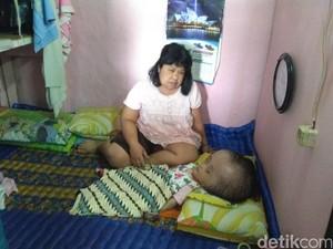 Pemkot Bandung Diminta Bantu Bocah Ririn Penderita Hidrosefalus