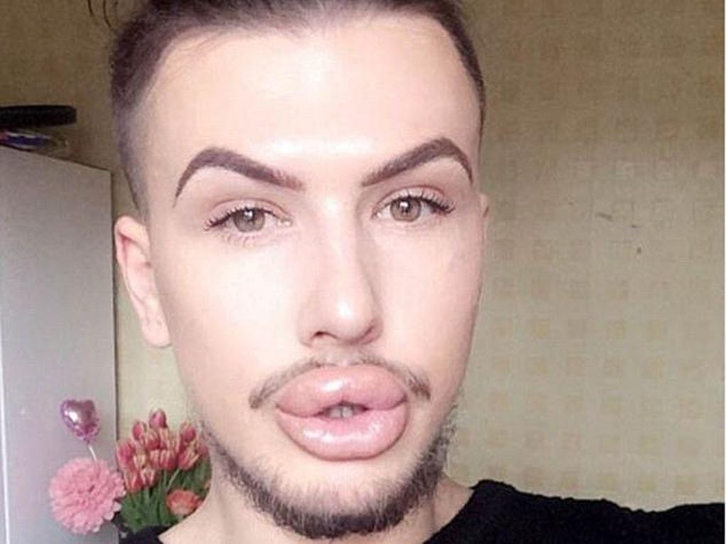Habiskan Rp 201 Juta, Ini Nasib Pria yang Kebanyakan Filler Bibir