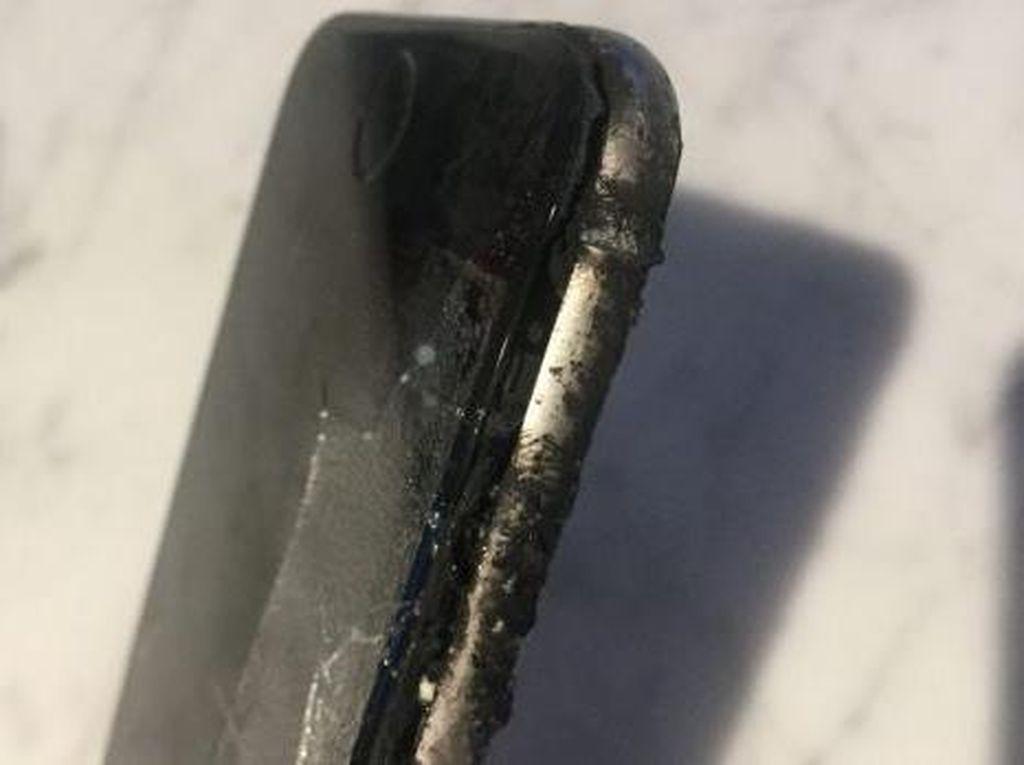 iPhone Meledak di Saku, Pria Ini Luka Bakar Parah