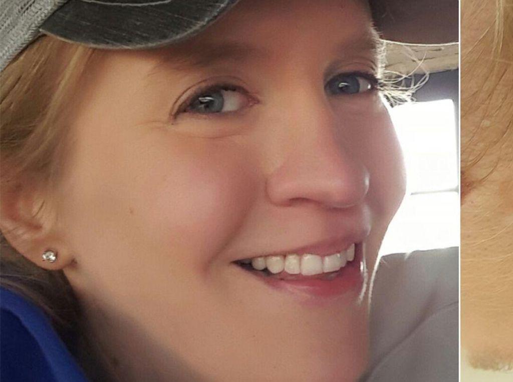 Gara-gara Sindrom Langka, Wanita Ini Puluhan Kali Kena Kanker Kulit