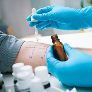 Catat, Ini Pentingnya Melakukan Tes Alergi