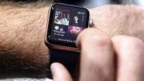 Promo Pembelian Apple Watch di Infinite Mengecewakan
