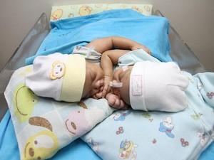 RSHS Bandung Rawat Bayi Kembar Siam Dempet Dada Asal Ciamis