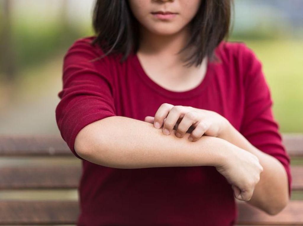 Penampilan Wanita yang Punya Penyakit Eksim, Bangga dengan Kondisi Kulitnya