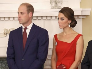 Seperti Pangeran William, Makin Banyak Millennial Mengalami Kebotakan Dini
