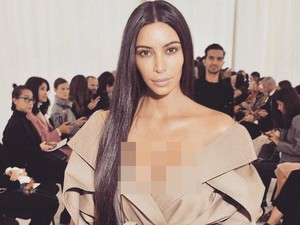 Bisakah Psoriasis Menyebar ke Wajah Seperti Dialami Kim Kardashian?