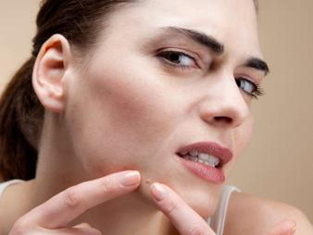 Banyak Beredar di Toko Online, Roaccutane untuk Obat Jerawat Aman Nggak Sih?