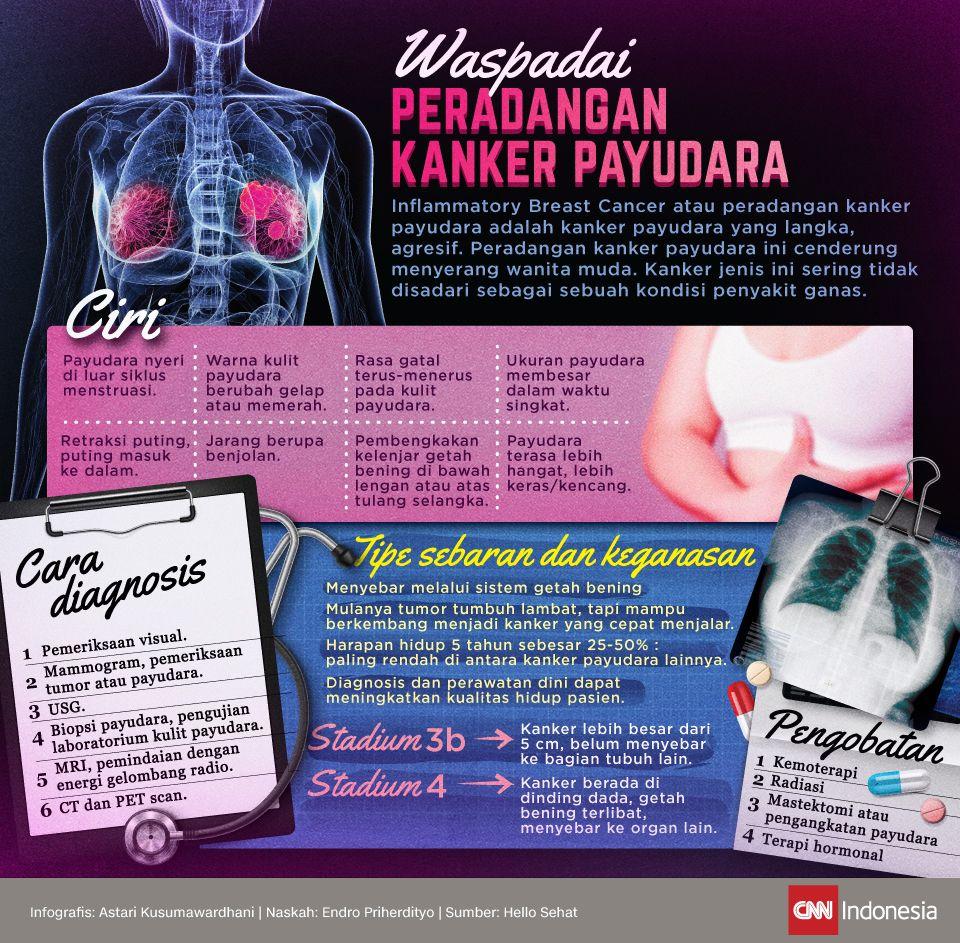 Infografis Waspadai Peradangan Kanker Payudara