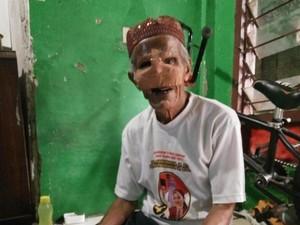 Menemui Kakek Abdurahman, Penjual Koran yang Kena Kanker Wajah di Kokas