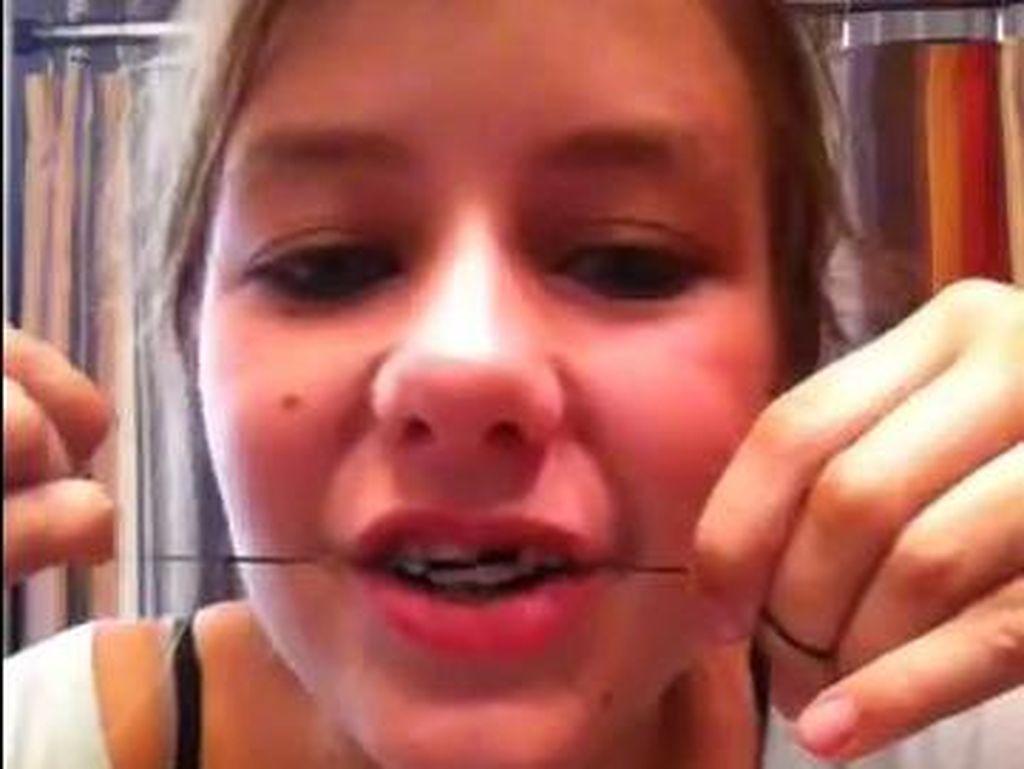 Ngeri, Tren Membuat Kawat Gigi Sendiri di Kalangan Remaja