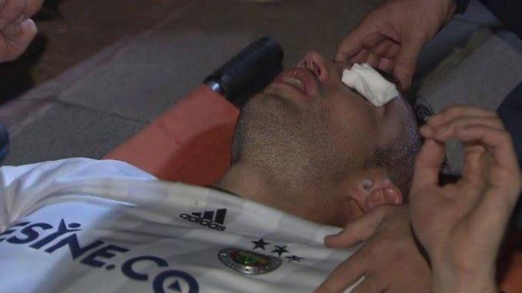 Cedera Mengerikan Van Persie: Kelopak Mata Terkoyak
