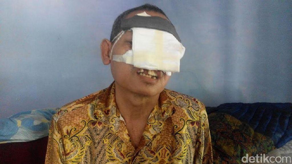 Pria Paruh Baya Ini Rawat Sendiri Wajahnya yang Nyaris Habis karena Kanker