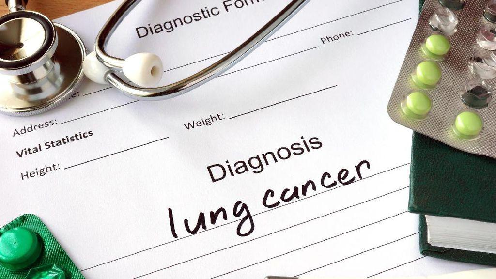 Rokok Konvensional Vs Elektrik, Mana Lebih Berisiko Picu Kanker Paru?