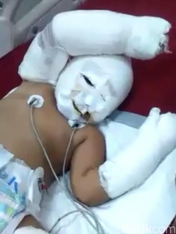 Suara Ortu Balita Korban Bom Samarinda soal Wacana Pulangkan WNI Eks ISIS