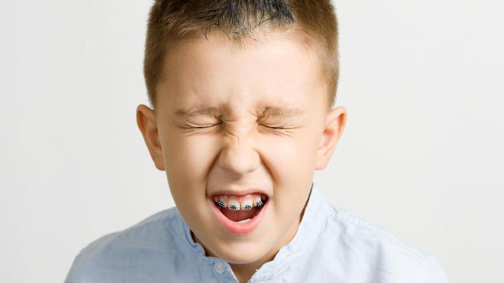 Perhatikan Dulu Hal Ini Sebelum Pakaikan Kawat Gigi untuk Anak Usia Sekolah