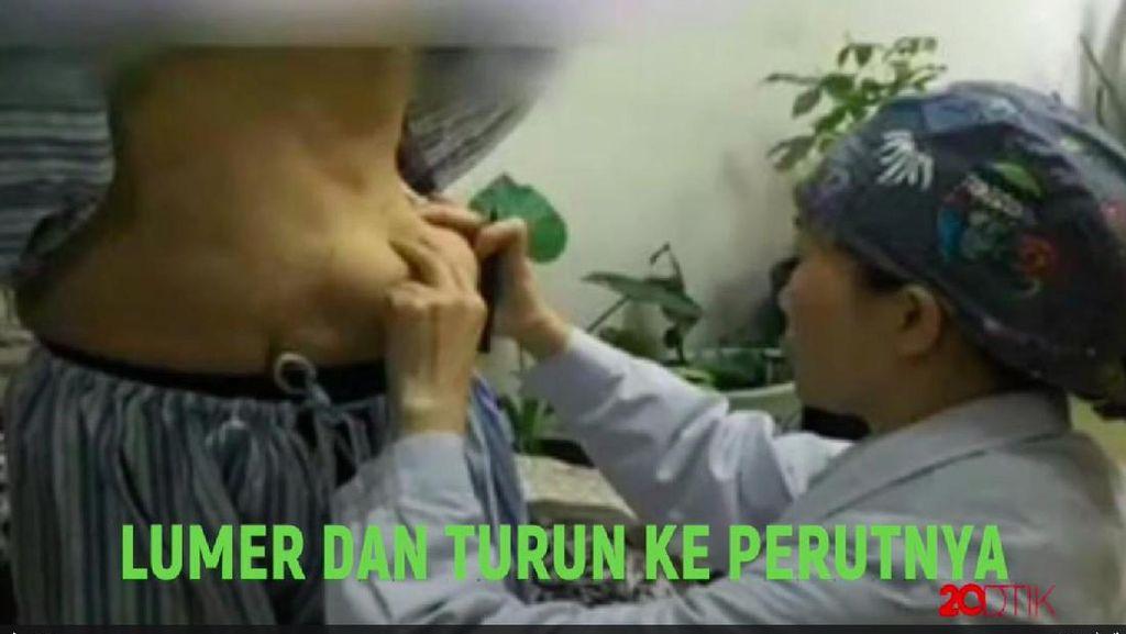 Tragis! Pakai Injeksi Ilegal, Payudara Malah Pindah ke Perut